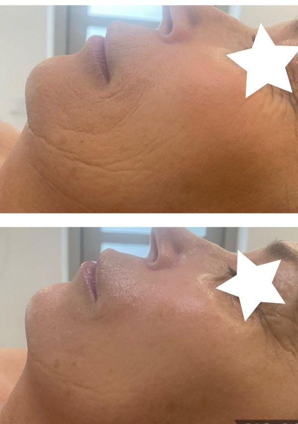 Dé specialist in huidverjonging zonder ingreep! 2