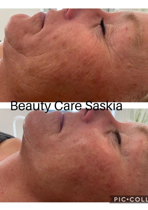 Dé specialist in huidverjonging zonder ingreep! 3